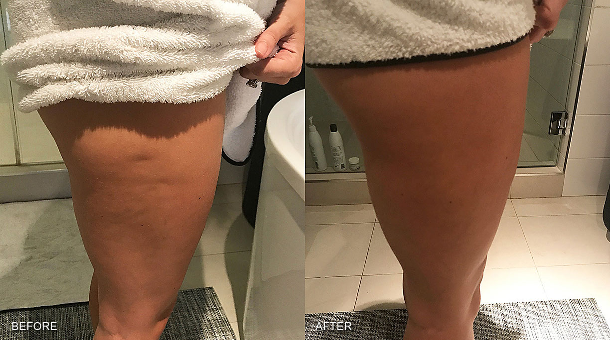 Before after photo of cryotherapy on cellulite